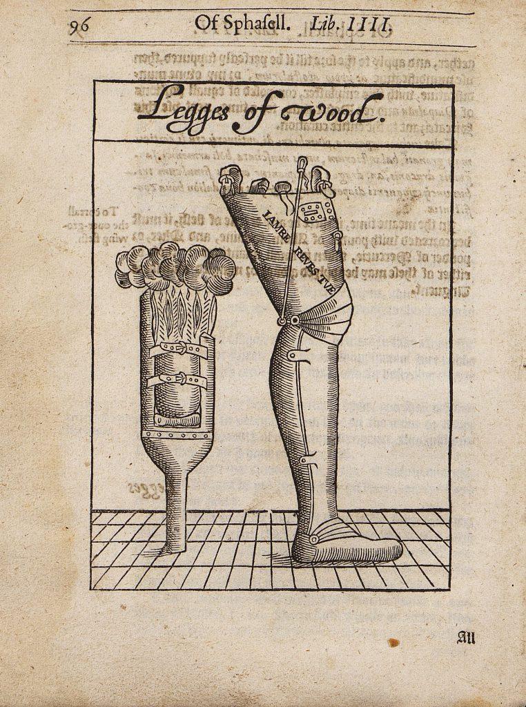 """Jednoduchá bércová a mechanická stehenní dřevěná protéza na dřevorytu z Chirurgerie (1597) Petera Loweho (1550-1610). Ilustrace je převzata z Chirurgie Ambroise Paré včetně textu """"iambe revestue,"""" tedy noha """"oděná"""" do anatomického tvaru."""