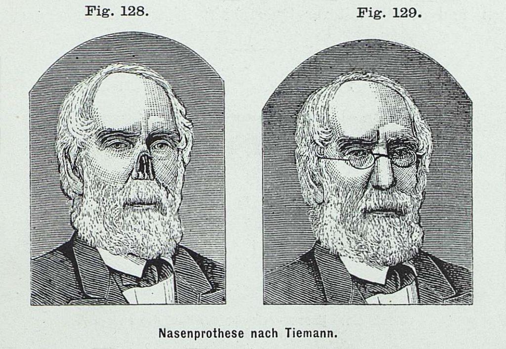 Epitéza nosu výrobce Goerge Tiemanna (1889) je svrchu upevněná na brýlích a dole dvěma pružinami v nosní dutině. (F. von Esmarch, E. Kowalzig, Chirurgische Technik (Berlin, 1892).