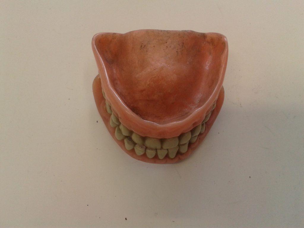 Zubní náhrada horní i dolní čelisti, 40. - 50. léta (ZM NLK)