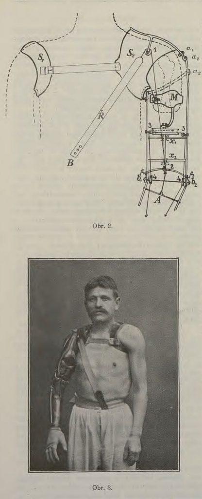 Náhrada horní končetiny dle návrhu prim. Jaroslava Elgarta (Časopis lékařů českých 1908)